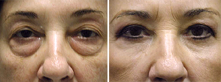 Fortunately There Are Many Elective Cosmetic Procedures To Choose From That Designed Impact And Improve The Skin Surrounding Eyes
