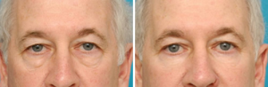Actual Patient Before and After Lower Blepharoplasty with suspension to remove eyelid puffiness and circles (lid cheek junction deformity).