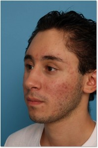 Craniofacial After Fat
