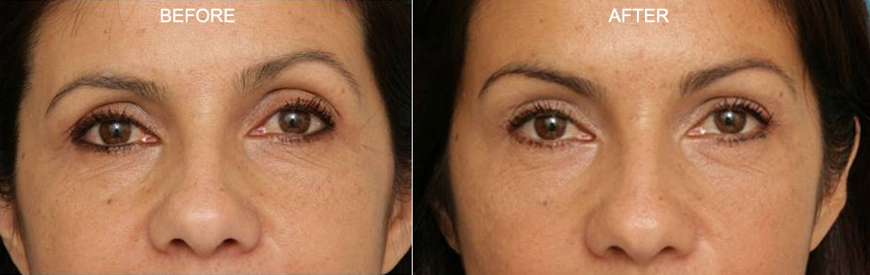 Orbital Fat Injections from Patrick K. Sullivan, MD, FACS - Upper Eyelid / Brow Junction Treatment