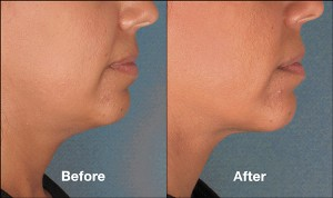KybellaPatientPRI6BeforeAfter(SideView)