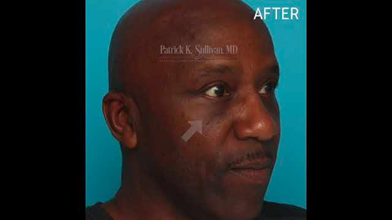 Eyelid surgery and Fat Injection Before & Afters by Dr Patrick K Sullivan
